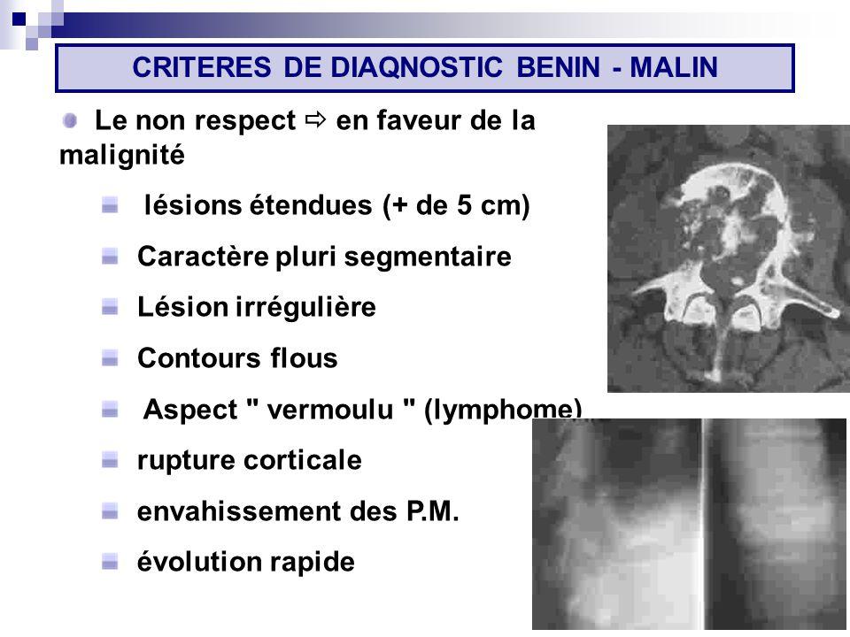 Le non respect en faveur de la malignité lésions étendues (+ de 5 cm) Caractère pluri segmentaire Lésion irrégulière Contours flous Aspect vermoulu (lymphome) rupture corticale envahissement des P.M.