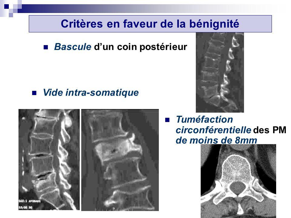Bascule dun coin postérieur Critères en faveur de la bénignité Vide intra-somatique Tuméfaction circonférentielle des PM de moins de 8mm