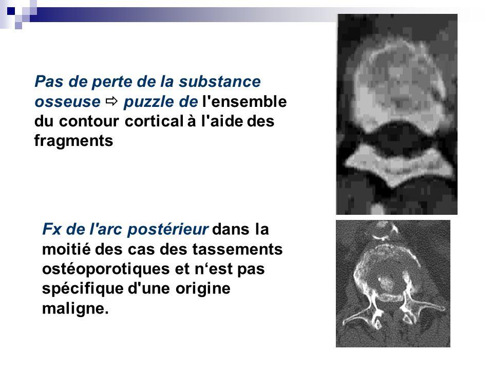 Pas de perte de la substance osseuse puzzle de l ensemble du contour cortical à l aide des fragments Fx de l arc postérieur dans la moitié des cas des tassements ostéoporotiques et nest pas spécifique d une origine maligne.