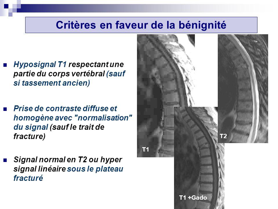 Hyposignal T1 respectant une partie du corps vertébral (sauf si tassement ancien) Prise de contraste diffuse et homogène avec normalisation du signal (sauf le trait de fracture) Signal normal en T2 ou hyper signal linéaire sous le plateau fracturé T1 T1 +Gado T2 Critères en faveur de la bénignité