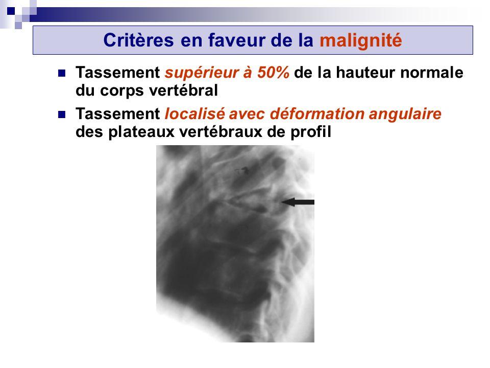 Tassement supérieur à 50% de la hauteur normale du corps vertébral Tassement localisé avec déformation angulaire des plateaux vertébraux de profil Critères en faveur de la malignité