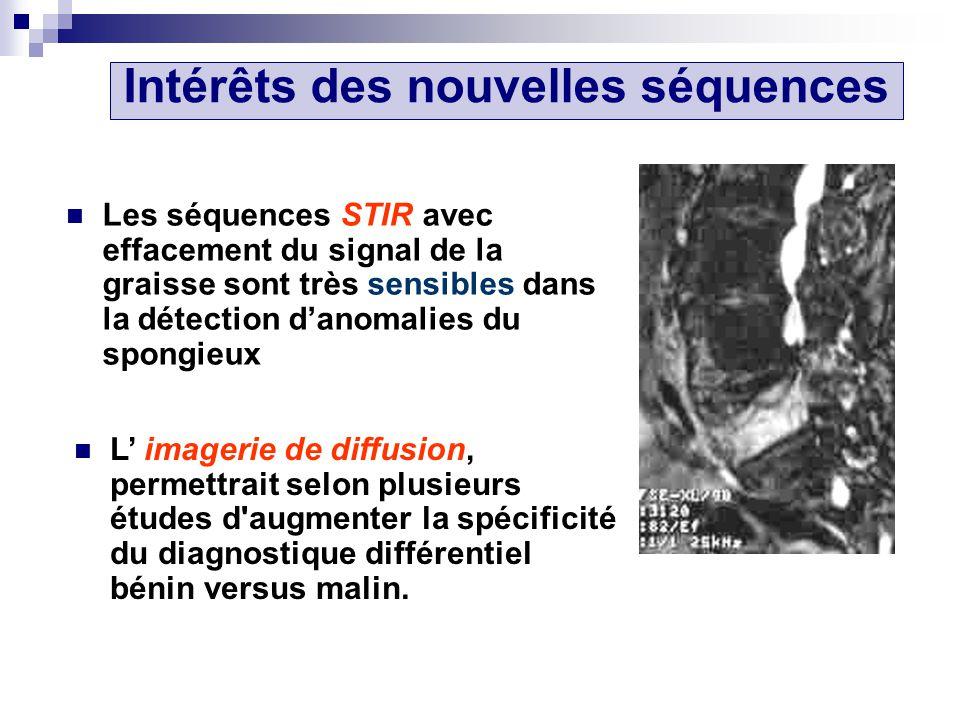 Les séquences STIR avec effacement du signal de la graisse sont très sensibles dans la détection danomalies du spongieux L imagerie de diffusion, permettrait selon plusieurs études d augmenter la spécificité du diagnostique différentiel bénin versus malin.
