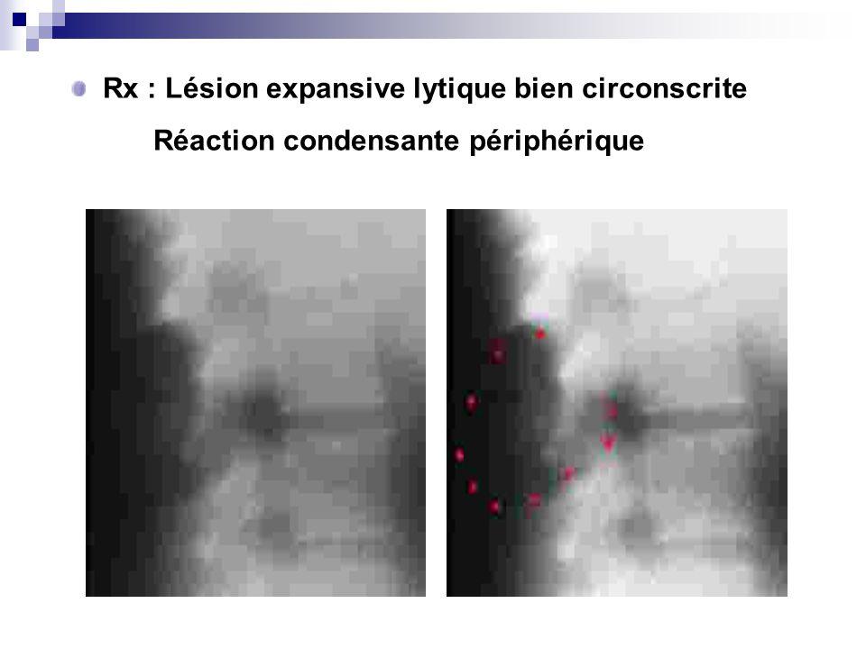 Rx : Lésion expansive lytique bien circonscrite Réaction condensante périphérique