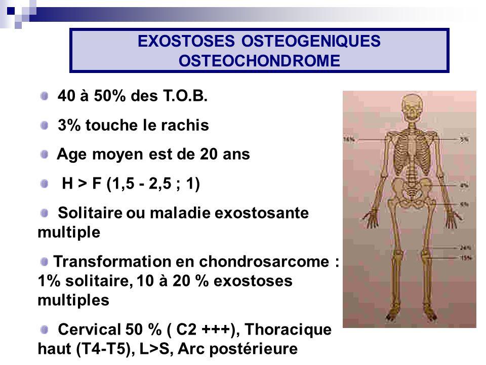 40 à 50% des T.O.B.