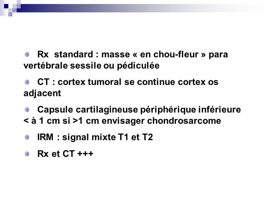 Rx standard : masse « en chou-fleur » para vertébrale sessile ou pédiculée CT : cortex tumoral se continue cortex os adjacent Capsule cartilagineuse périphérique inférieure 1 cm envisager chondrosarcome IRM : signal mixte T1 et T2 Rx et CT +++