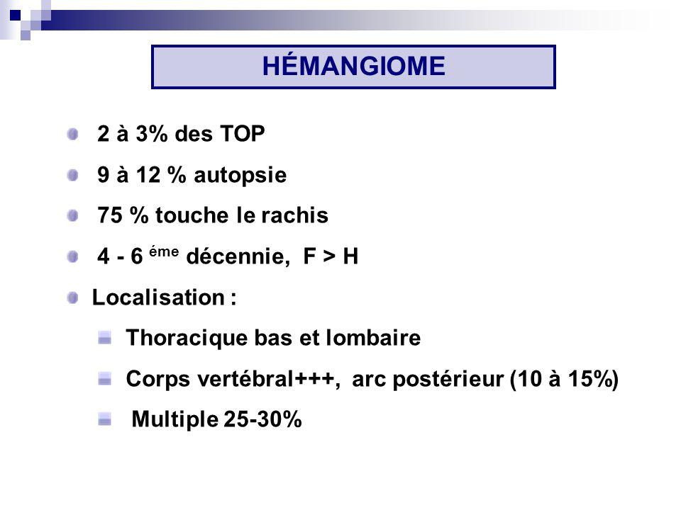 HÉMANGIOME 2 à 3% des TOP 9 à 12 % autopsie 75 % touche le rachis 4 - 6 éme décennie, F > H Localisation : Thoracique bas et lombaire Corps vertébral+++, arc postérieur (10 à 15%) Multiple 25-30%