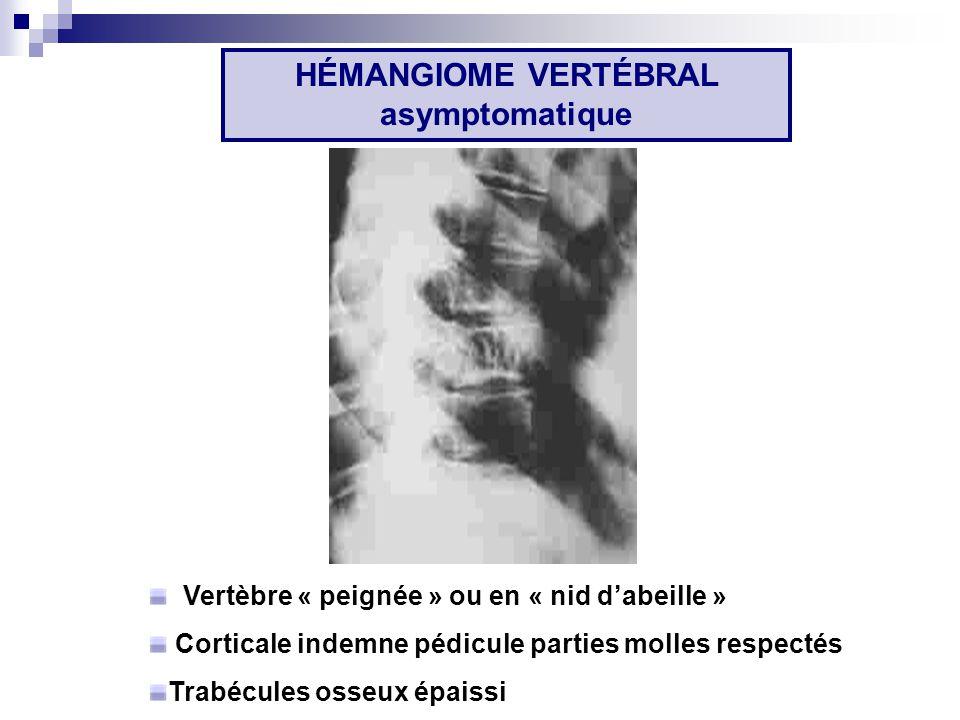 Vertèbre « peignée » ou en « nid dabeille » Corticale indemne pédicule parties molles respectés Trabécules osseux épaissi HÉMANGIOME VERTÉBRAL asymptomatique