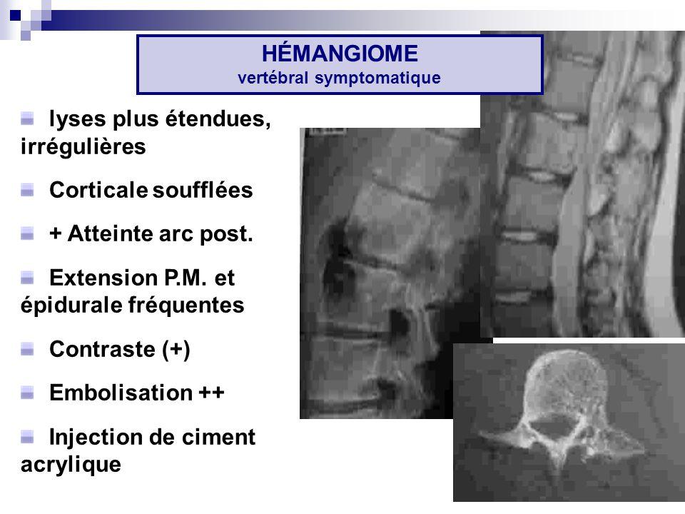 HÉMANGIOME vertébral symptomatique lyses plus étendues, irrégulières Corticale soufflées + Atteinte arc post.