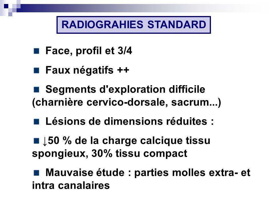 RADIOGRAHIES STANDARD Face, profil et 3/4 Faux négatifs ++ Segments d exploration difficile (charnière cervico-dorsale, sacrum...) Lésions de dimensions réduites : 50 % de la charge calcique tissu spongieux, 30% tissu compact Mauvaise étude : parties molles extra- et intra canalaires