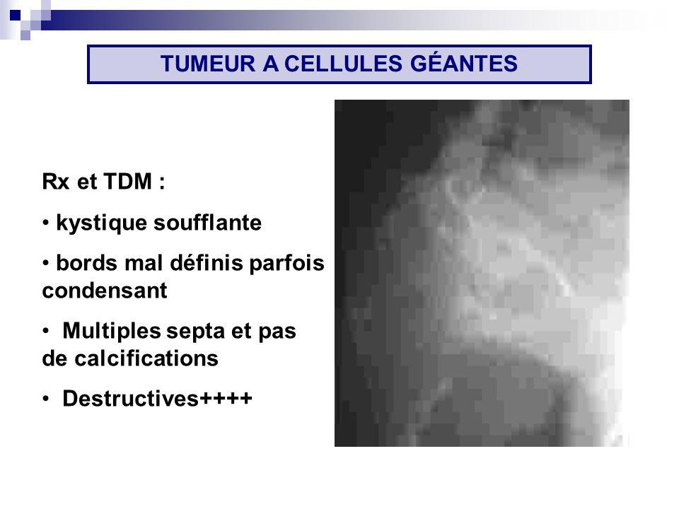 Rx et TDM : kystique soufflante bords mal définis parfois condensant Multiples septa et pas de calcifications Destructives++++ TUMEUR A CELLULES GÉANTES