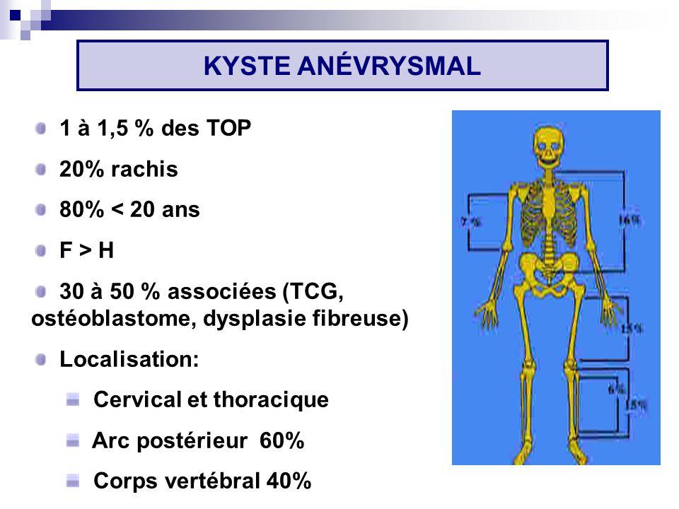 1 à 1,5 % des TOP 20% rachis 80% < 20 ans F > H 30 à 50 % associées (TCG, ostéoblastome, dysplasie fibreuse) Localisation: Cervical et thoracique Arc postérieur 60% Corps vertébral 40% KYSTE ANÉVRYSMAL