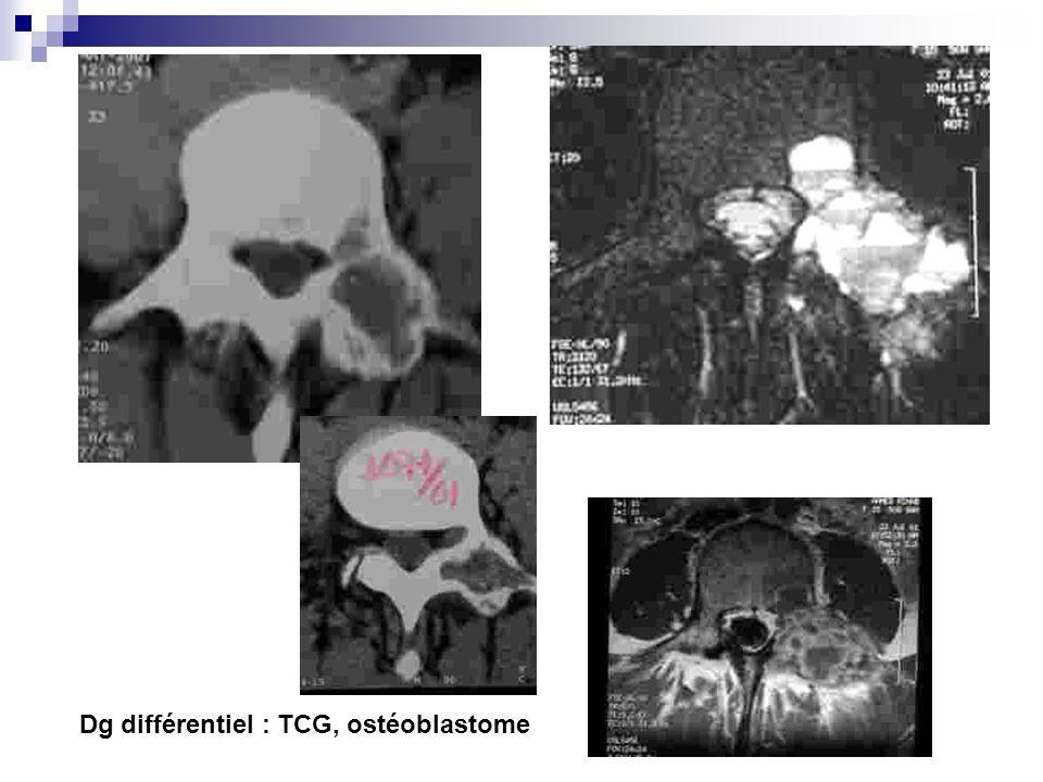 Dg différentiel : TCG, ostéoblastome