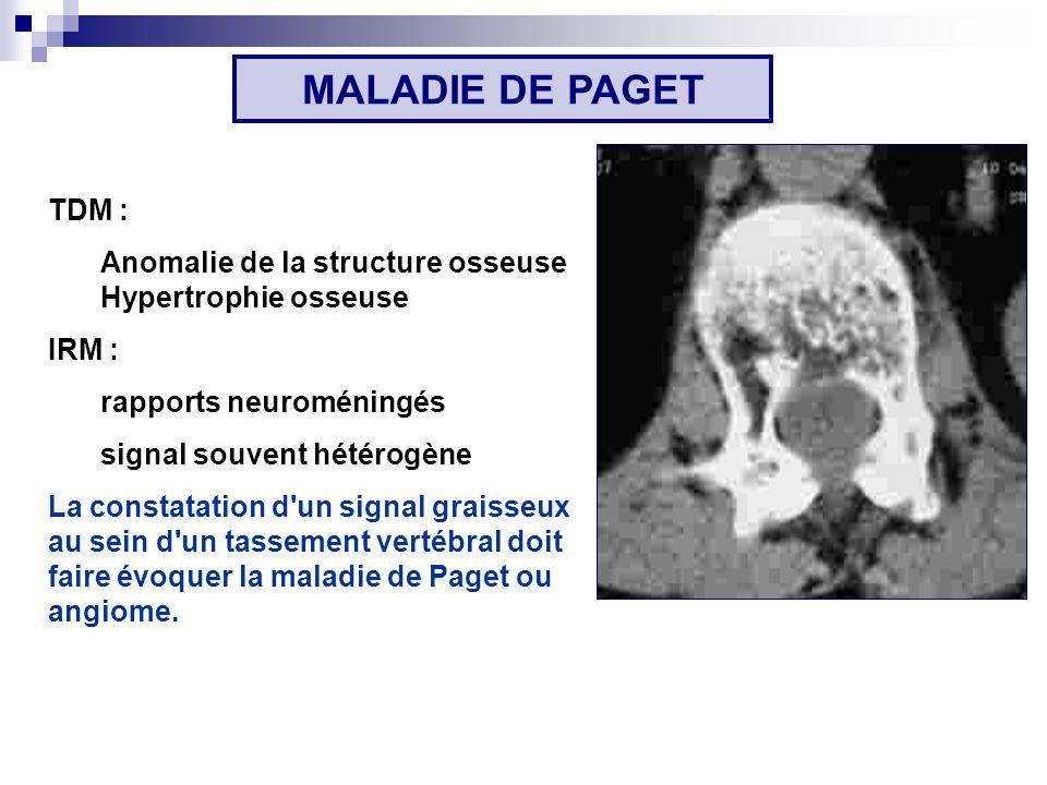 TDM : Anomalie de la structure osseuse Hypertrophie osseuse IRM : rapports neuroméningés signal souvent hétérogène La constatation d un signal graisseux au sein d un tassement vertébral doit faire évoquer la maladie de Paget ou angiome.
