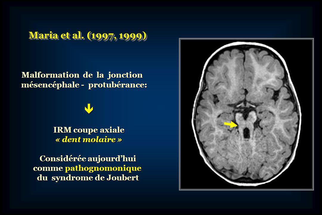 Critères cliniques du Syndrome de Joubert Retard psychomoteur de gravité variable Retard psychomoteur de gravité variable Hypotonie dans la petite enfance Hypotonie dans la petite enfance Troubles du rythme respiratoire Troubles du rythme respiratoire et/ou et/ou Mouvements oculaires anormaux Mouvements oculaires anormaux « Dent molaire » sur coupe axiale en IRM « Dent molaire » sur coupe axiale en IRM En outre, chez certains sujets Dysmorphie faciale Dysmorphie faciale Polydactylie Polydactylie Kystes rénaux Kystes rénaux