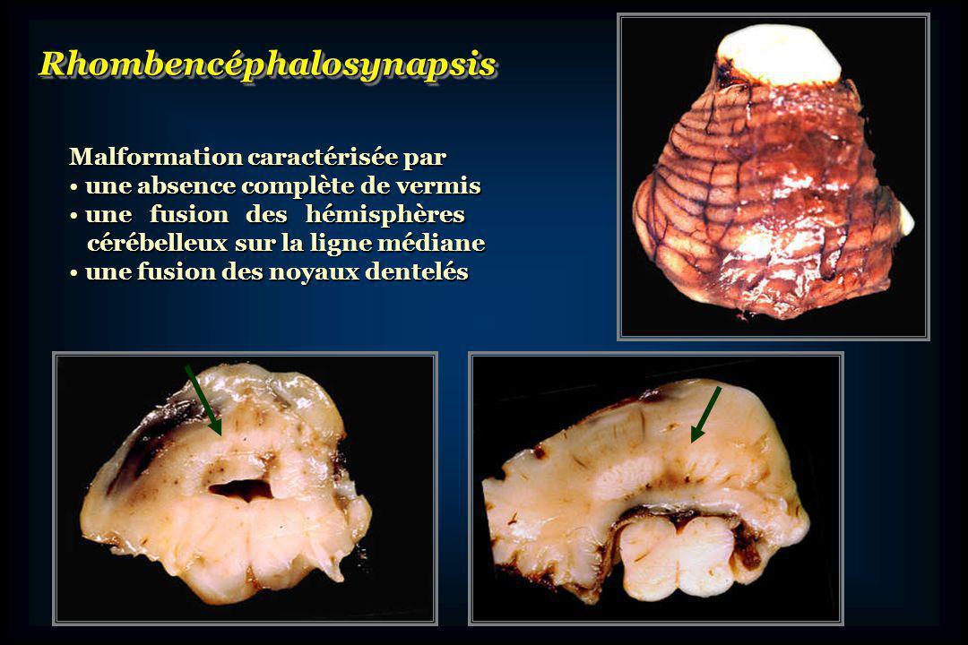 Associé à dautres anomalies du tronc cérébralAssocié à dautres anomalies du tronc cérébral origine embryologique commune(isthme) origine embryologique commune(isthme) Mésencéphalosynapsis (fusion TQJ) Mésencéphalosynapsis (fusion TQJ) Sténose ou atrésie de laqueduc Sténose ou atrésie de laqueduc Hydrocéphalie+++(souvent signe dappel!) Hydrocéphalie+++(souvent signe dappel!) Parfois associé à des anomalies viscérales et/ou squelettiquesParfois associé à des anomalies viscérales et/ou squelettiquesMésencéphalosynapsisHydrocéphalie Cause inconnue Cause inconnue En majorité sporadiques En majorité sporadiques Rares cas familiaux Rares cas familiaux Fusion noyaux dentelés