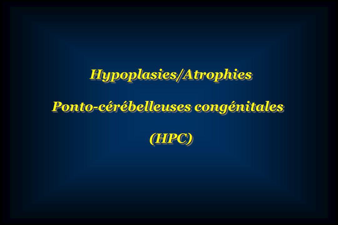 Groupe daffections génétiques caractérisées par une hypoplasie ou atrophie du cervelet et du pont, une hypoplasie ou atrophie du cervelet et du pont, à début prénatal à début prénatal affectant de façon prédominante, les hémisphères affectant de façon prédominante, les hémisphères cérébelleux et le pont cérébelleux et le pont respectant relativement le vermis et le lobe respectant relativement le vermis et le lobe flocullo-nodulaire flocullo-nodulaire une transmission selon le mode autosomique récessif une transmission selon le mode autosomique récessif un pronostic neurologique constamment sévère un pronostic neurologique constamment sévère