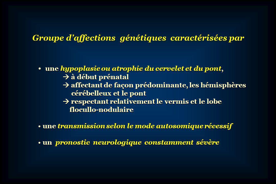 Evolution du concept Initialement, incluses dans les Atrophies Olivo-Ponto-Cérébelleuses Initialement, incluses dans les Atrophies Olivo-Ponto-Cérébelleuses Puis identifiées comme des entités différentes Puis identifiées comme des entités différentes Première classification (Barth, 1993): 2 types dHPC Première classification (Barth, 1993): 2 types dHPC HPC de type 1, associée à une atteinte de la corne antérieure HPC de type 1, associée à une atteinte de la corne antérieure de la moelle avec arthrogrypose de la moelle avec arthrogrypose HPC de type 2, avec microcéphalie, dystonie et mouvements HPC de type 2, avec microcéphalie, dystonie et mouvements anormaux, dès la naissance, sans atteinte anormaux, dès la naissance, sans atteinte de la moelle de la moelle
