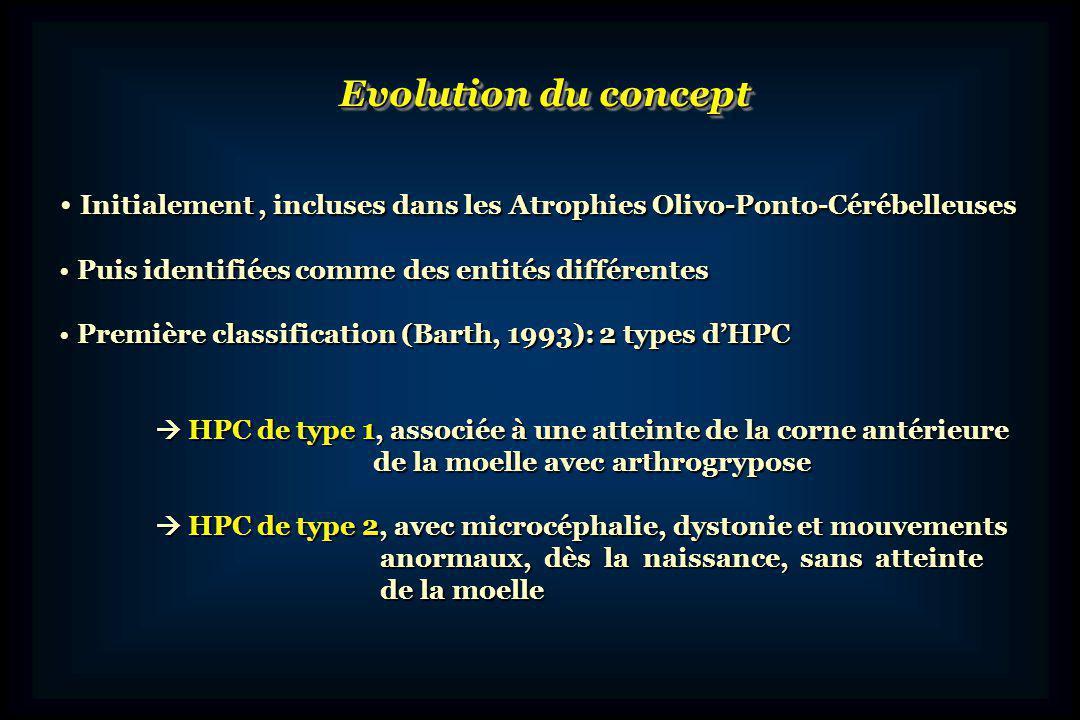 Actuellement, 6 formes dHPC sont décrites sur des critères cliniques et dimagerie Actuellement, 6 formes dHPC sont décrites sur des critères cliniques et dimagerie HPC de type 3, proche du type 2, avec atrophie optique HPC de type 3, proche du type 2, avec atrophie optique HPC de type 4, forme sévère du type 2, avec une létalité précoce HPC de type 4, forme sévère du type 2, avec une létalité précoce HPC de type 5, avec une atteinte diffuse du SNC et une atteinte HPC de type 5, avec une atteinte diffuse du SNC et une atteinte prédominante du vermis prédominante du vermis HPC de type 6, avec hypotonie, microcéphalie et atrophie HPC de type 6, avec hypotonie, microcéphalie et atrophie ponto-cérébelleuse progressives, épilepsie sévère, déficit des ponto-cérébelleuse progressives, épilepsie sévère, déficit des complexes I, II, IV de la chaine respiratoire complexes I, II, IV de la chaine respiratoire Les formes les plus fréquentes : type 1, 2 et 4 les autres types décrits dans des familles isolées les autres types décrits dans des familles isolées Les formes les plus fréquentes : type 1, 2 et 4 les autres types décrits dans des familles isolées les autres types décrits dans des familles isolées