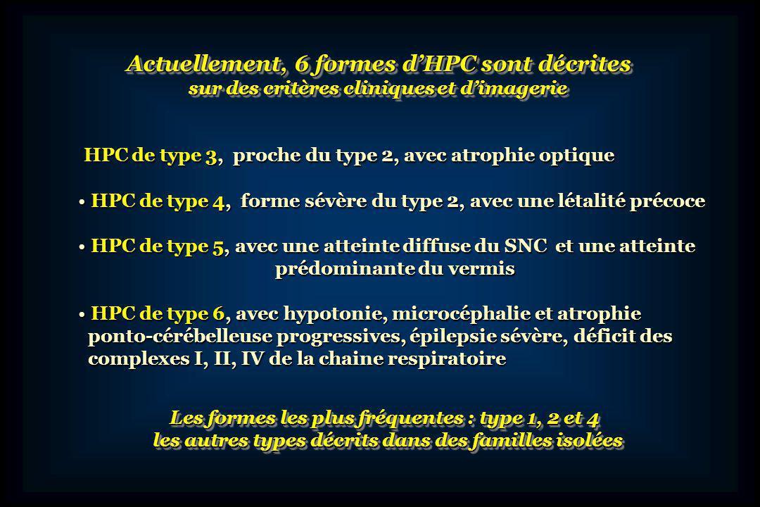 40 s, RCIU, microcéphalie, dysmorphie faciale 40 s, RCIU, microcéphalie, dysmorphie faciale hypotonie axiale, arthrogrypose distale hypotonie axiale, arthrogrypose distale DC à J 24 DC à J 24 ATCD: 1 garçon DCD même tableau ATCD: 1 garçon DCD même tableau Control microcéphalie microcéphalie gyri atrophiques gyri atrophiques cervelet atrophique cervelet atrophique « en galette » HPC de type 1