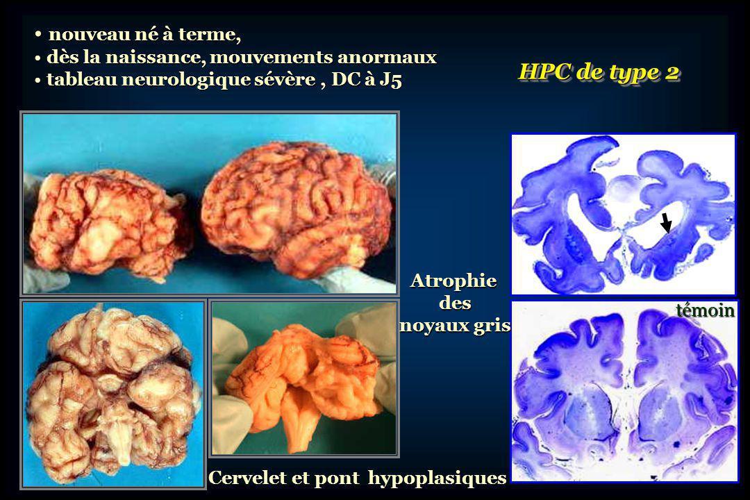 témoin Hypoplasie cérébelleuse épargnant relativement Hypoplasie cérébelleuse épargnant relativement le vermis et le lobe flocullo-nodulaire le vermis et le lobe flocullo-nodulaire Hypoplasie du pont (plat) Hypoplasie du pont (plat) témoin