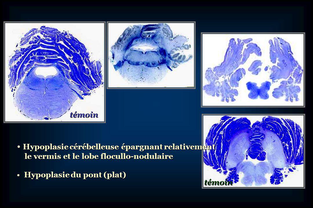 Récemment, identification de mutations Dans plusieurs familles atteintes dHPC de type 2 et 4 (2007) Dans plusieurs familles atteintes dHPC de type 2 et 4 (2007) Gène TSEN (tRNA splicing endonucléase) Gène TSEN (tRNA splicing endonucléase) - 4 sous-unités - 4 sous-unités - mutations dans 3 sous-unités - mutations dans 3 sous-unités TSEN 54, TSEN 34, TSEN2 Localisation en 7q11.21 dans 1 famille dHPC de type 3 Localisation en 7q11.21 dans 1 famille dHPC de type 3 RARS2 (6q16.1) dans lHPC de type 6 (2009) RARS2 (6q16.1) dans lHPC de type 6 (2009) Dans une famille HPC de type 1 (2009), VRK1 (14) Dans une famille HPC de type 1 (2009), VRK1 (14)