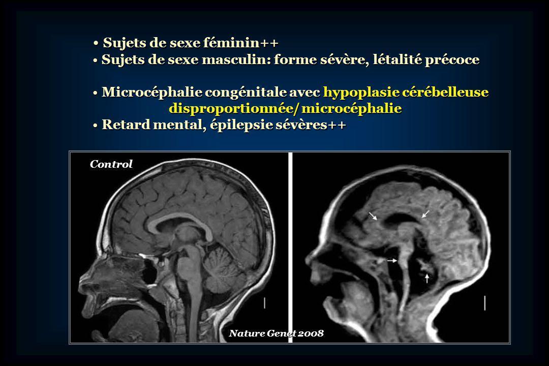 Anomalie de la cytoarchitectonie Anomalie de la cytoarchitectonie corticale corticale Hypoplasie sévère du tronc cérébral Hypoplasie sévère du tronc cérébral Lobules cérébelleux rudimentaires Lobules cérébelleux rudimentaires Mutations du gène CASK