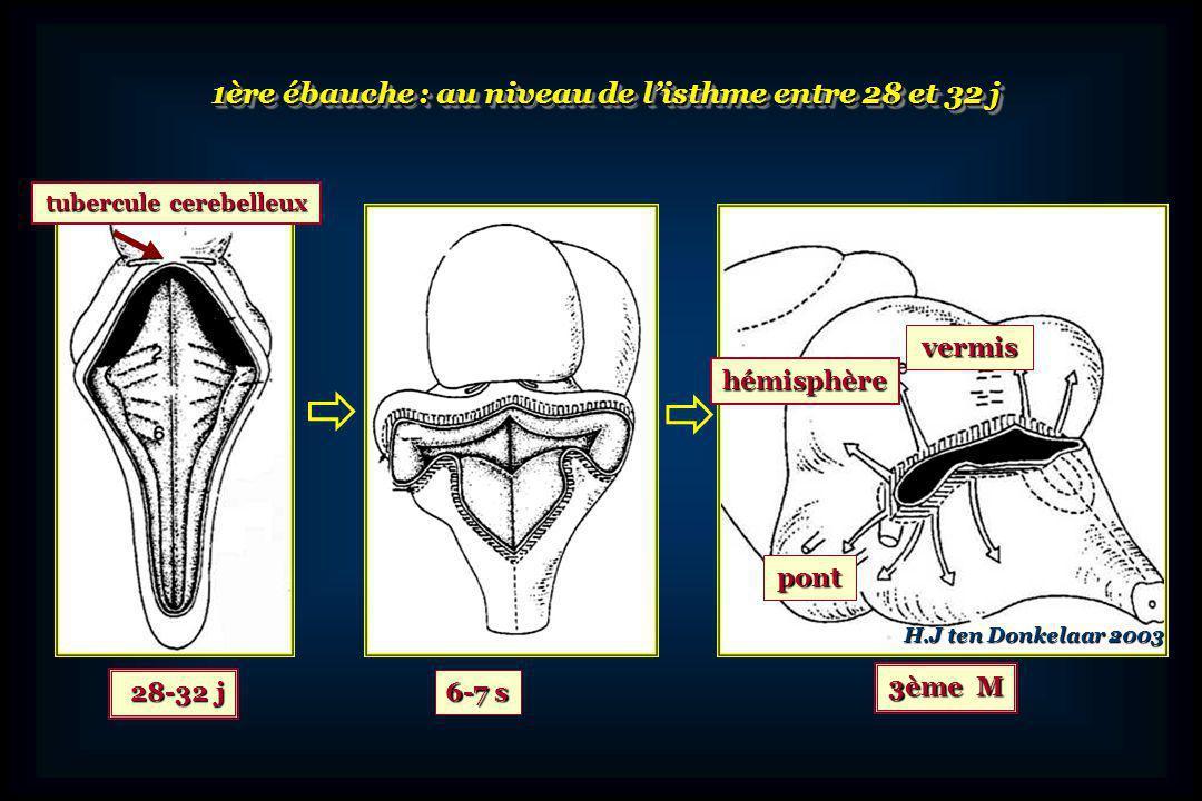 Lèvrerhombique Courant dorsal Grains externes Courant ventral Pont Bulbe Nx pont Olives bulbaires Noyaux du pont Olives bulbaires Noyaux cérébelleux décalés dans le tronc cérébral Développement du cervelet: 2 zones germinatives