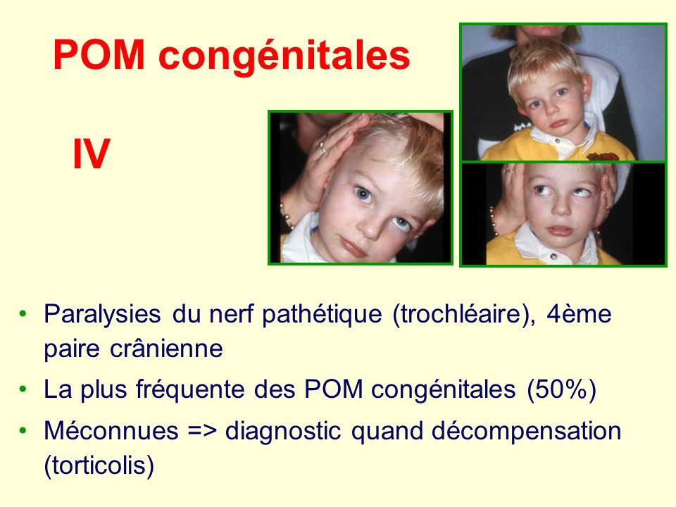 POM congénitales Paralysies du nerf pathétique (trochléaire), 4ème paire crânienne La plus fréquente des POM congénitales (50%) Méconnues => diagnosti