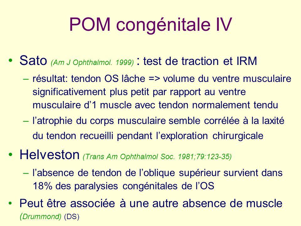 POM congénitale IV Sato (Am J Ophthalmol. 1999) : test de traction et IRM –résultat: tendon OS lâche => volume du ventre musculaire significativement