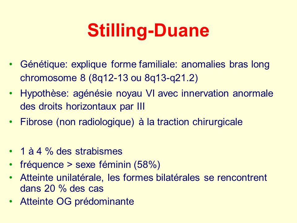 Stilling-Duane Génétique: explique forme familiale: anomalies bras long chromosome 8 (8q12-13 ou 8q13-q21.2) Hypothèse: agénésie noyau VI avec innerva
