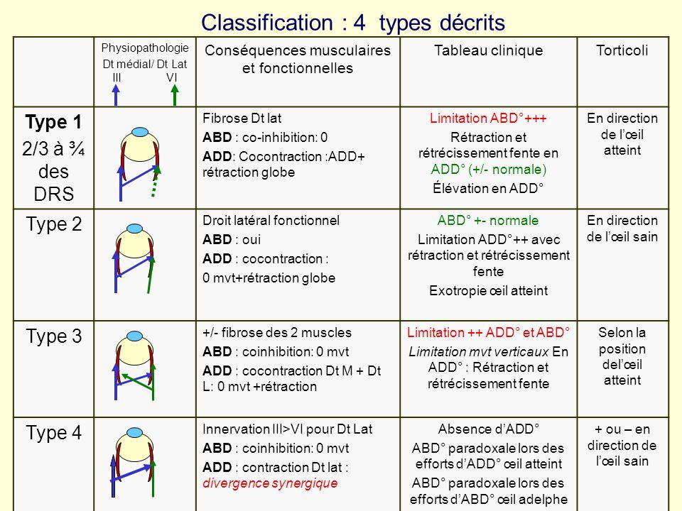 Classification : 4 types décrits Physiopathologie Dt médial/ Dt Lat III VI Conséquences musculaires et fonctionnelles Tableau cliniqueTorticoli Type 1