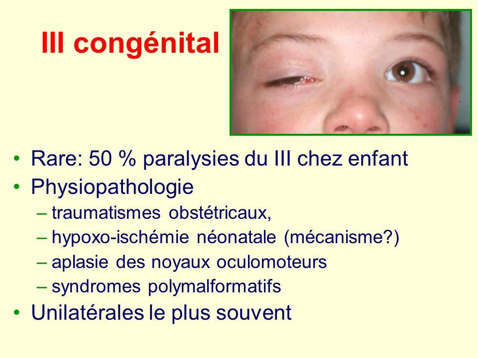 III congénital Rare: 50 % paralysies du III chez enfant Physiopathologie –traumatismes obstétricaux, –hypoxo-ischémie néonatale (mécanisme?) –aplasie