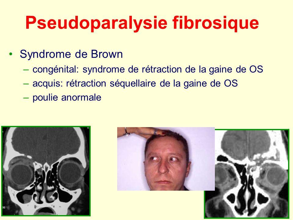 Pseudoparalysie fibrosique Syndrome de Brown –congénital: syndrome de rétraction de la gaine de OS –acquis: rétraction séquellaire de la gaine de OS –