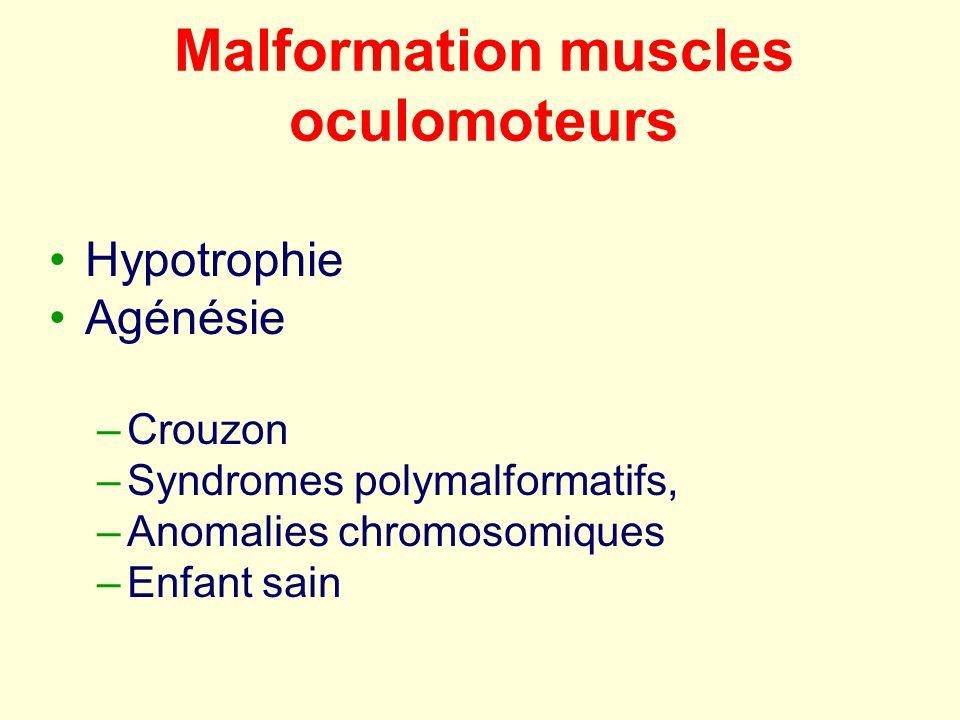 Malformation muscles oculomoteurs Hypotrophie Agénésie –Crouzon –Syndromes polymalformatifs, –Anomalies chromosomiques –Enfant sain