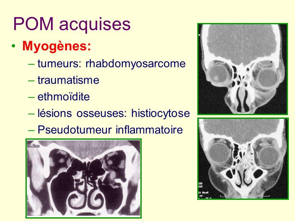 POM acquises Myogènes: –tumeurs: rhabdomyosarcome –traumatisme –ethmoïdite –lésions osseuses: histiocytose –Pseudotumeur inflammatoire