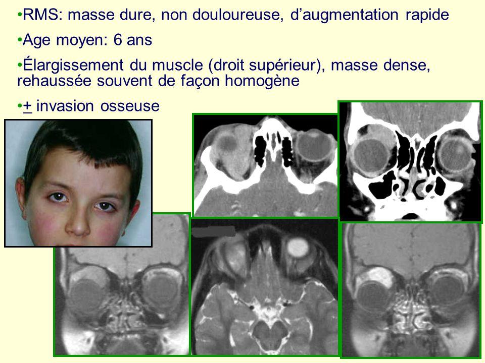 RMS: masse dure, non douloureuse, daugmentation rapide Age moyen: 6 ans Élargissement du muscle (droit supérieur), masse dense, rehaussée souvent de f