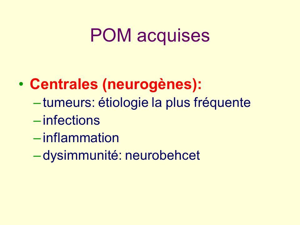 POM acquises Centrales (neurogènes): –tumeurs: étiologie la plus fréquente –infections –inflammation –dysimmunité: neurobehcet