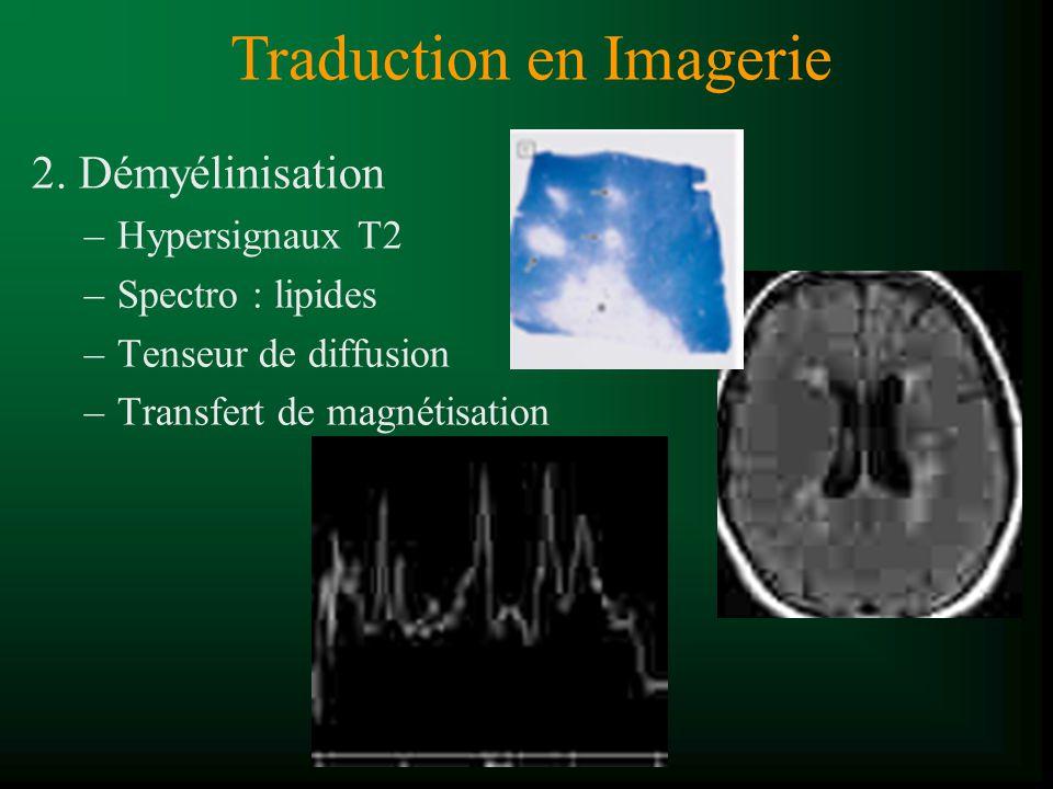 2. Démyélinisation –Hypersignaux T2 –Spectro : lipides –Tenseur de diffusion –Transfert de magnétisation Traduction en Imagerie