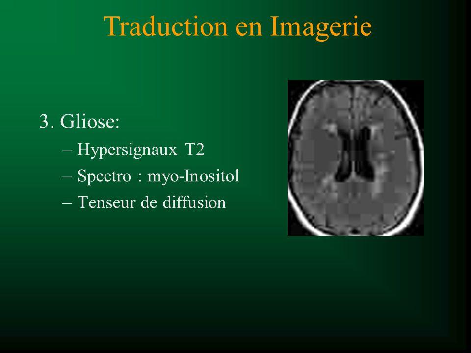 3. Gliose: –Hypersignaux T2 –Spectro : myo-Inositol –Tenseur de diffusion Traduction en Imagerie