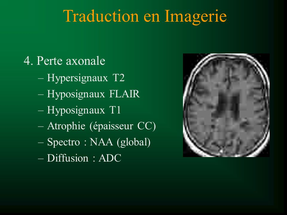 4. Perte axonale –Hypersignaux T2 –Hyposignaux FLAIR –Hyposignaux T1 –Atrophie (épaisseur CC) –Spectro : NAA (global) –Diffusion : ADC Traduction en I