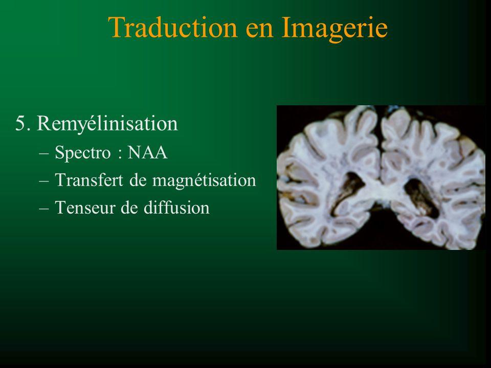5. Remyélinisation –Spectro : NAA –Transfert de magnétisation –Tenseur de diffusion Traduction en Imagerie