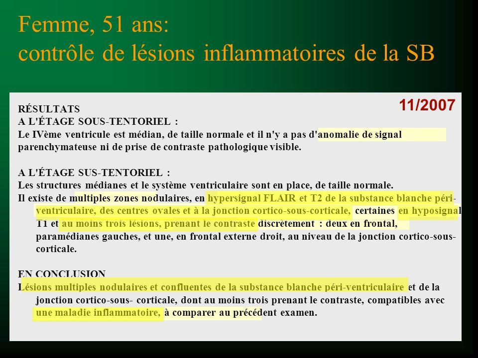 - multiples ZHST2 de la substance blanche péri- ventriculaire, des centres ovales et à la jonction cortico-sous-corticale - hyposignal T1 - au moins trois lésions, prenant le contraste discrètement CONCLUSION compatibles avec une maladie inflammatoire Femme, 51 ans : contrôle de lésions inflammatoires de la SB