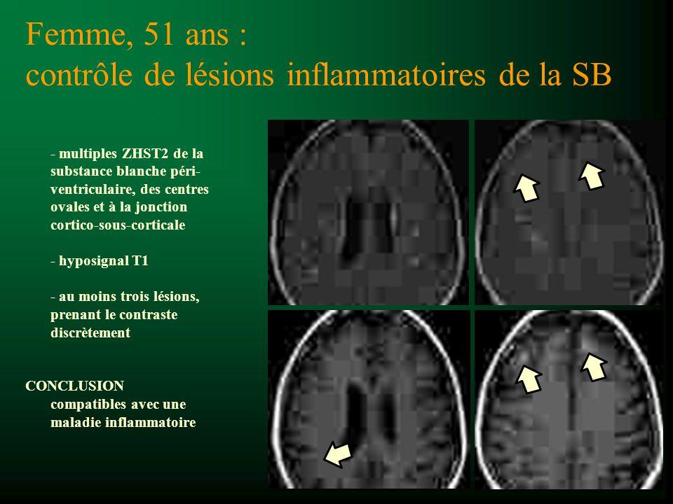 11/2007 Femme, 51 ans : contrôle de lésions inflammatoires de la SB RÉSULTATS A L ÉTAGE SOUS-TENTORIEL : Le IVème ventricule est médian, de taille normale et il n y a pas d anomalie de signal parenchymateuse ni de prise de contraste pathologique visible.