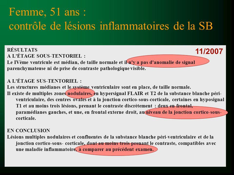 11/2007 Femme, 51 ans : contrôle de lésions inflammatoires de la SB RÉSULTATS A L'ÉTAGE SOUS-TENTORIEL : Le IVème ventricule est médian, de taille nor
