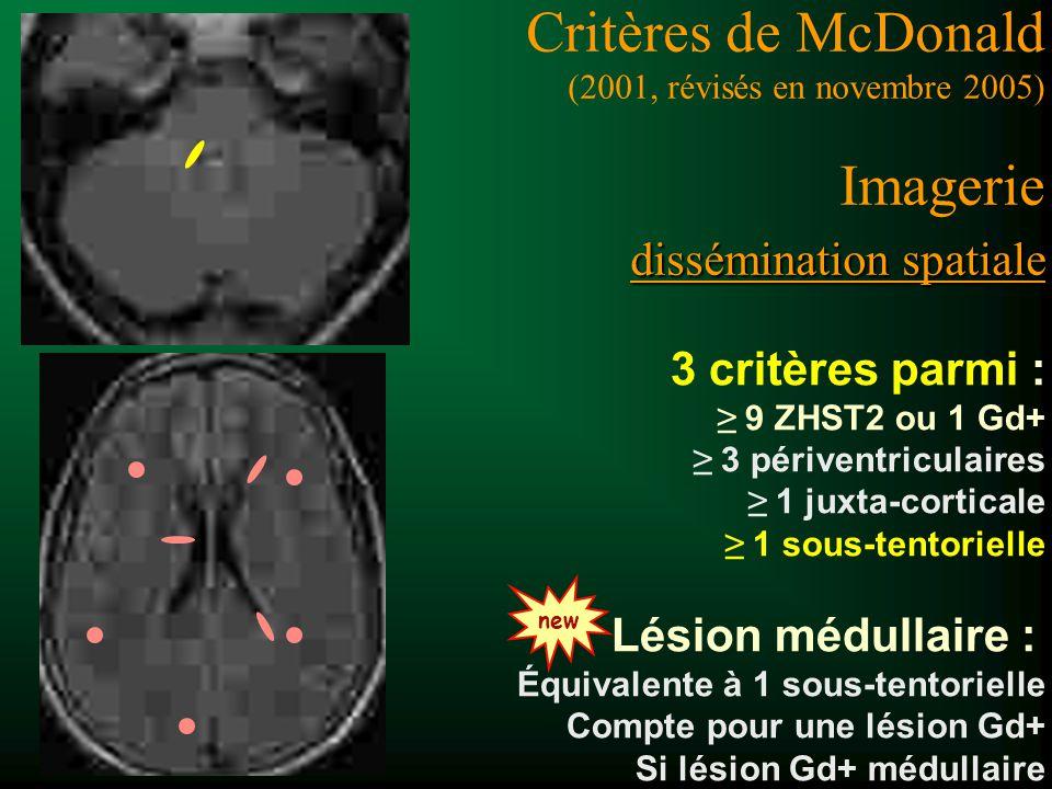3 critères parmi : 9 ZHST2 ou 1 Gd+ 3 périventriculaires 1 juxta-corticale 1 sous-tentorielle Lésion médullaire : Équivalente à 1 sous-tentorielle ET Compte pour une lésion Gd+ Si lésion Gd+ médullaire dissémination spatiale Critères de McDonald (2001, révisés en novembre 2005) Imagerie dissémination spatiale new
