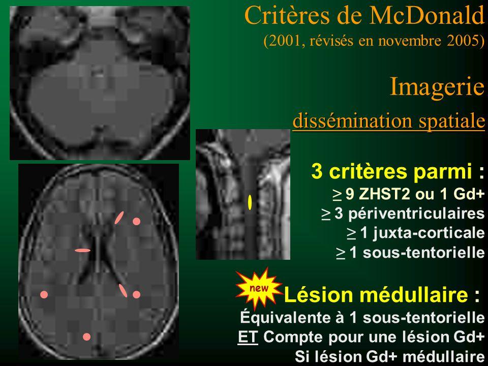 3 critères parmi : 9 ZHST2 ou 1 Gd+ 3 périventriculaires 1 juxta-corticale 1 sous-tentorielle Lésion médullaire : Équivalente à 1 sous-tentorielle ET