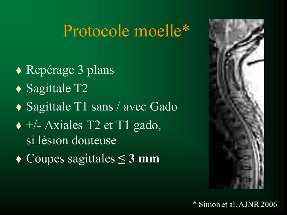 Protocole moelle* t Repérage 3 plans t Sagittale T2 t Sagittale T1 sans / avec Gado t +/- Axiales T2 et T1 gado, si lésion douteuse 3 mm t Coupes sagi