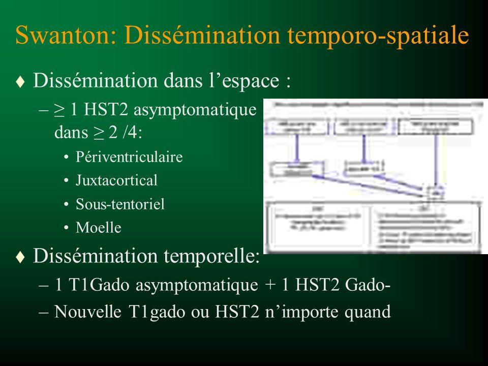 Swanton: Dissémination temporo-spatiale t Dissémination dans lespace : – 1 HST2 asymptomatique dans 2 /4: Périventriculaire Juxtacortical Sous-tentori