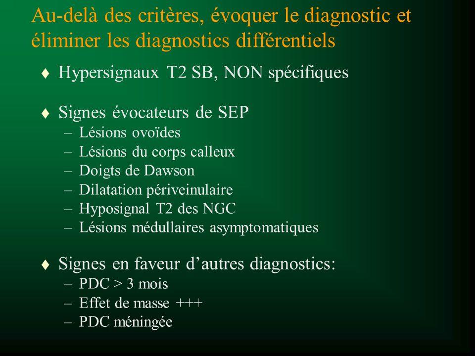 Au-delà des critères, évoquer le diagnostic et éliminer les diagnostics différentiels t Hypersignaux T2 SB, NON spécifiques t Signes évocateurs de SEP
