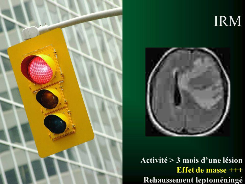 IRM Activité > 3 mois dune lésion Effet de masse +++ Rehaussement leptoméningé